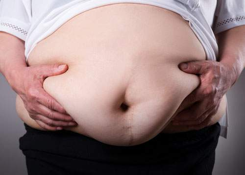 [caption:Bariatric Surgery] Click to go to the Bariatric Surgery page